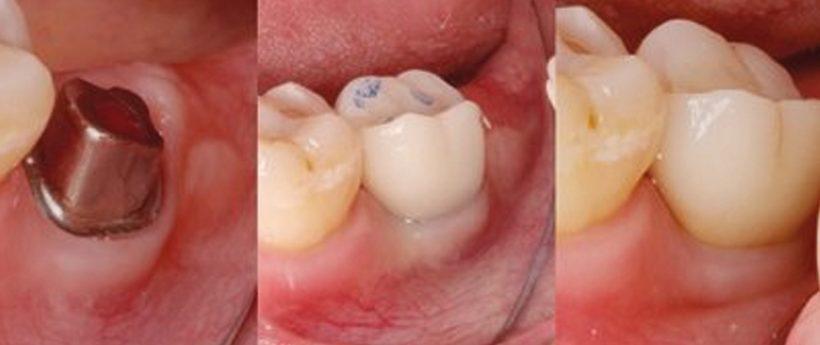 Vollkeramische Implantatversorgung leicht gemacht