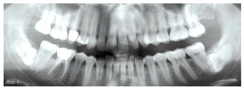 Abb. 1 - Befund: retinierte und verlagerte Weisheitszähne 38/48, Ischämische Osteonekrosen 18/28, wurzelbehandelte und beherdete Zähne (DVT) 15/46