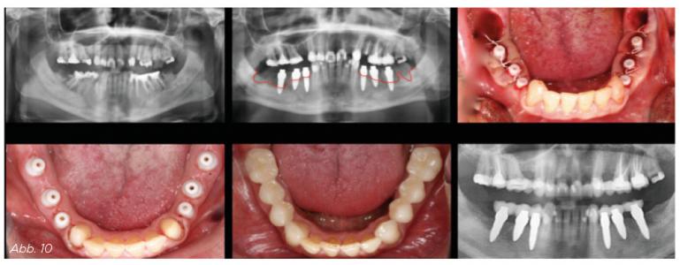 Abb. 10 - Entfernung der zerstörten Zähne 34 – 38 und 44 – 48, Sofortimplantate 36 – 34 und 44 – 46, Stabilisierung der Attached Gingiva an den Implantat-Tulpen nach dem Zeltstangenprinzip. Versorgung mit Kronen nach nur drei Monaten. Vollständige vertikale Knochenregeneration an den Sofortimplantaten.