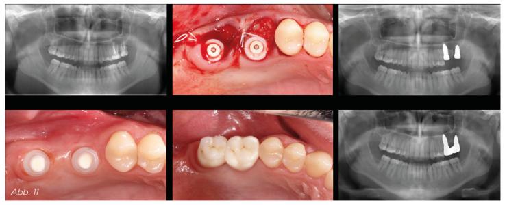 Abb. 11 - typischer vestibulärer Knocheneinbruch bei Sofortimplantation in die palatinale Wurzel.