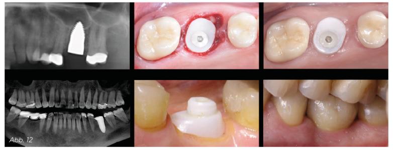 Abb. 12 - Auch im Unterkiefer kann hiermit in sehr eindrucksvoller Weise das Volumen in der Region der nicht implantierten Wurzel erhalten werden.