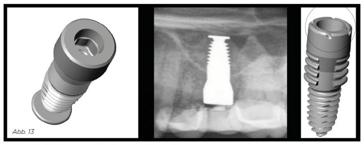 """Abb. 13 - Sinusimplantat mit dem """"Sonnenschirmeffekt"""". Ganz rechts das Diskimplantat."""