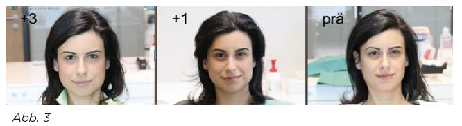 Abb. 3 - Befi nden der Patientin: minimale, von außen kaum sichtbare Schwellung postoperativ. Rechts direkt vor dem Eingriff , Mitte 1 Tag postoperativ, links drei Tage postoperativ. Systemstress v.a. in der Augenpartie bereits reduziert.