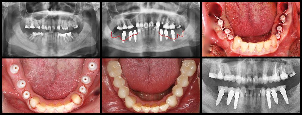 Abb. 3: Entfernung der zerstörten Zähne 34–38 und 44–48, Sofortimplantate 36–34 und 44–46, Stabilisierung der Attached Gingiva an den Implantattulpen nach dem Zeltstangenprinzip. Versorgung mit Kronen nach nur drei Monaten. Vollständige vertikale Knochenregeneration. © Autor