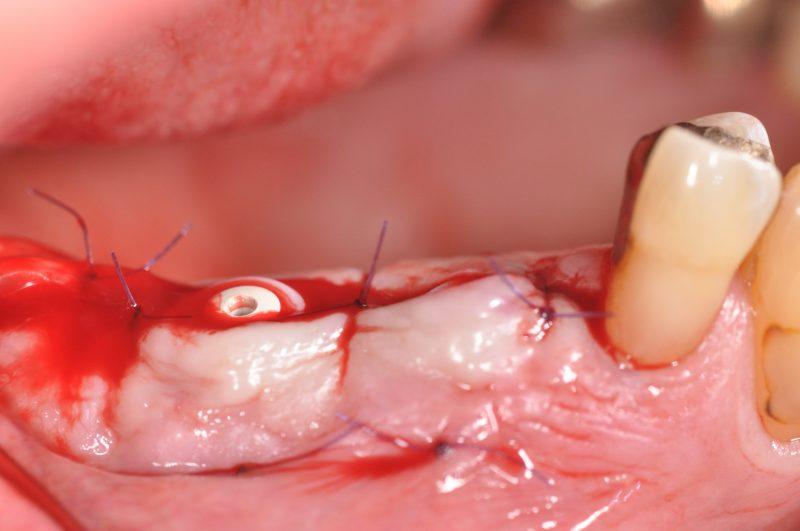 Abb. 12: Bukkale Ansicht: Implantation 25 und 26. © Dr. Dominik Nischwitz